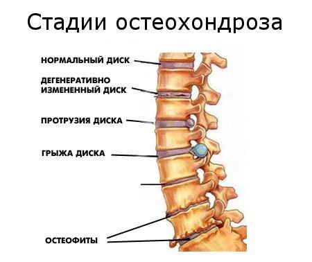 Прополис для лечения боли в суставах